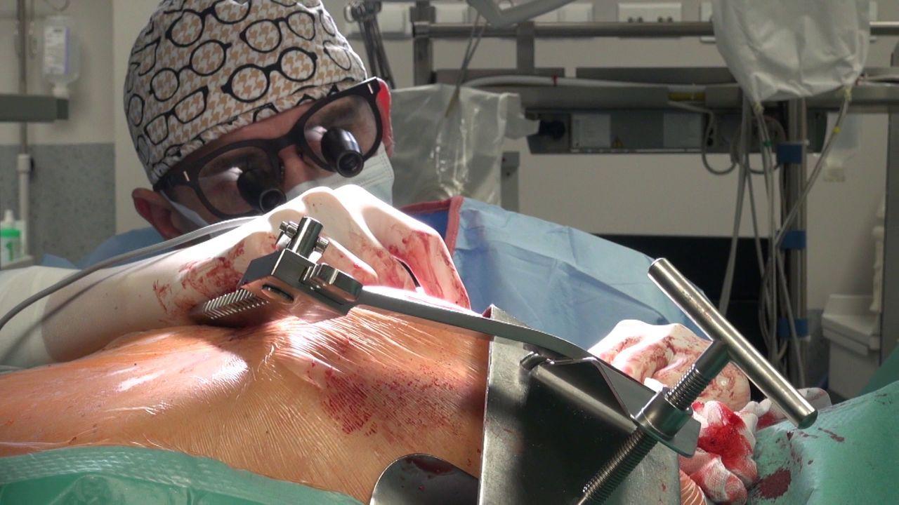 Sala operacyjna sezon 1, odcinek 3. Choroba serca i wszczepienie bajpasów