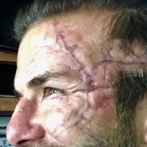 Beckham ma blizny jak Popek! Co się stało z twarzą piłkarza?