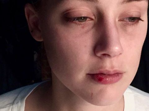 Amber Heard - ślady pobicia